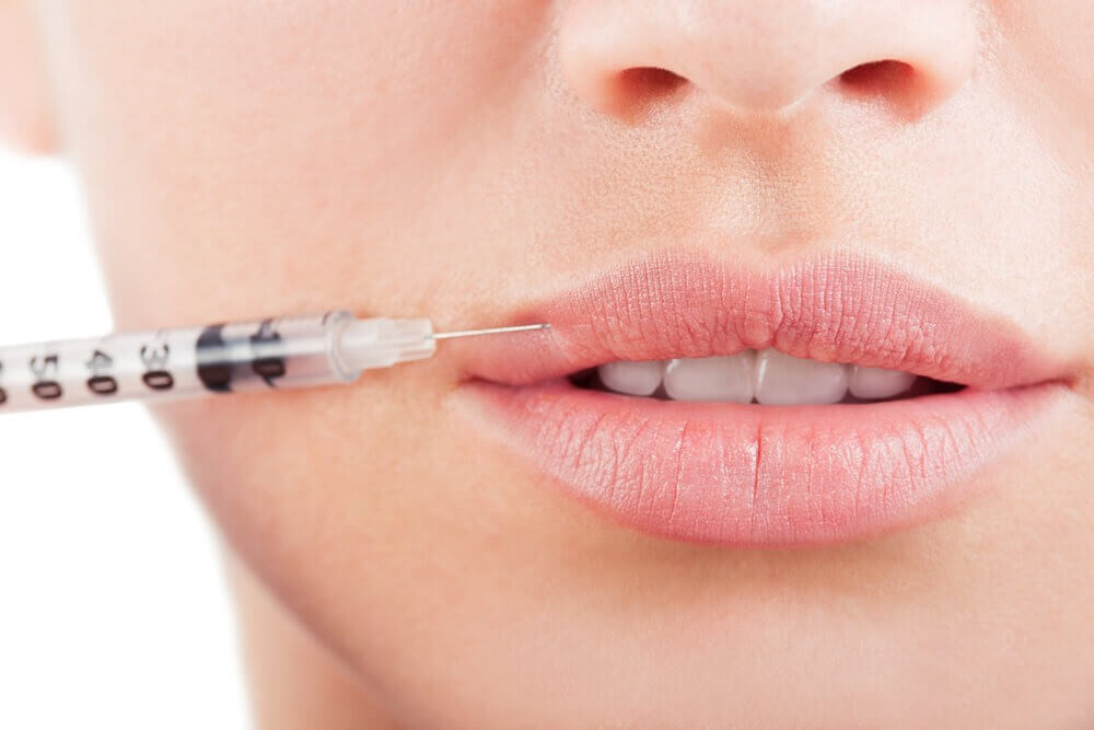 Lip-Fillers London and enhancement