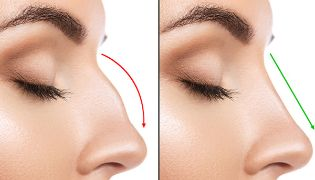 nose reshaping, non surgicle rhinoplasty