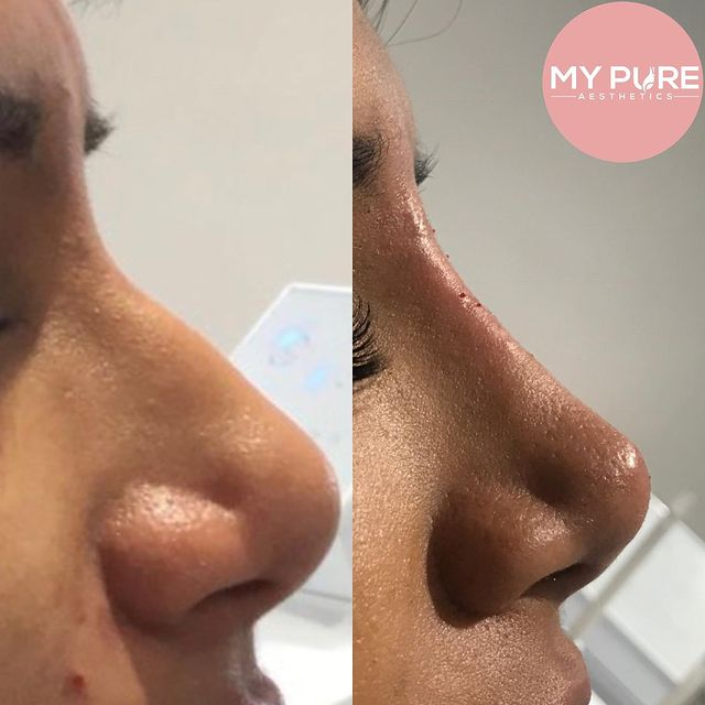 Non-Surgical Rhinoplasty At our Aesthetics Clinic in London
